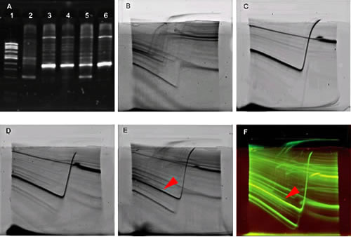 病原微生物の新たな診断法は、虫にも人間にも使えるオールインワン